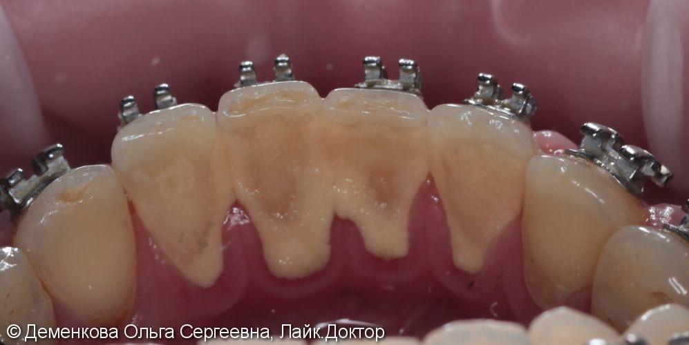 Чистка зубов - фото №1