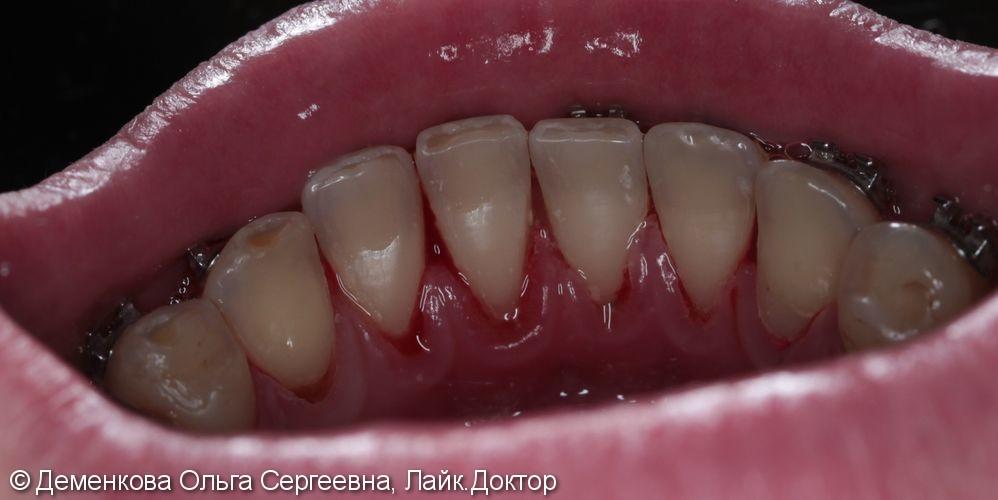 Чистка зубов - фото №2