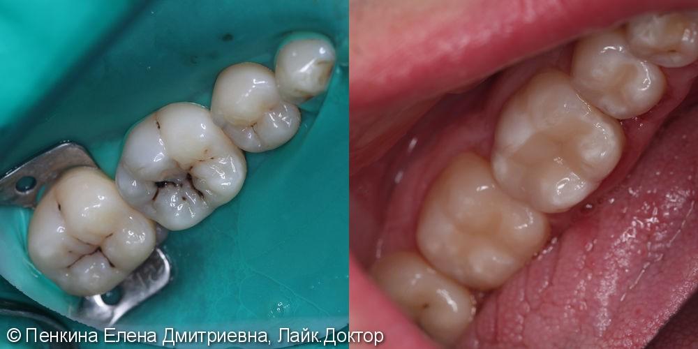 Лечение кариеса 2 зубов - фото №1