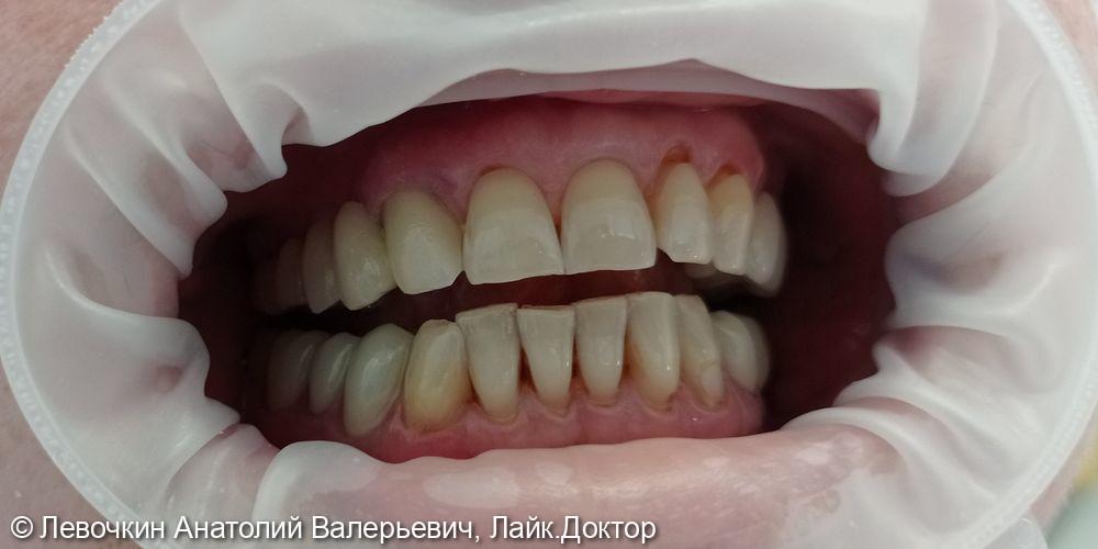 Замена мостовидного протеза с опорой на зубы 12, 14, 16 - фото №2