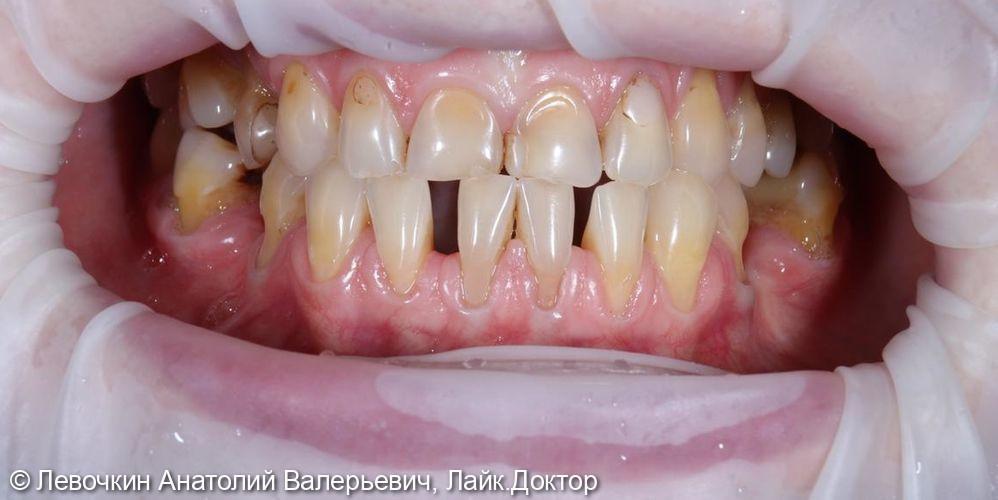 Тотальное восстановление зубного ряда безметалловыми конструкциями (E.max, диоксид циркония) - фото №1