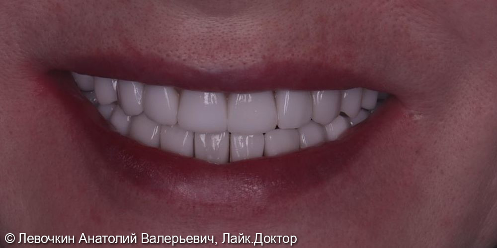 Тотальное восстановление зубного ряда безметалловыми конструкциями (E.max, диоксид циркония) - фото №3