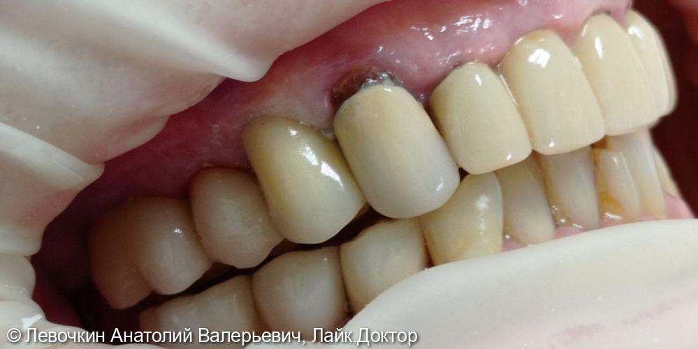 Восстановление коронковой части зуба коронкой из диоксида циркония - фото №2