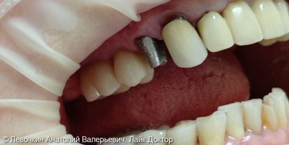Восстановление коронковой части зуба коронкой из диоксида циркония - фото №3