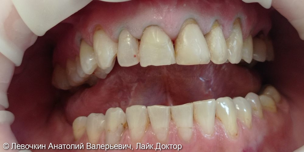 Протезирование зубов верхней челюсти винирами - фото №1