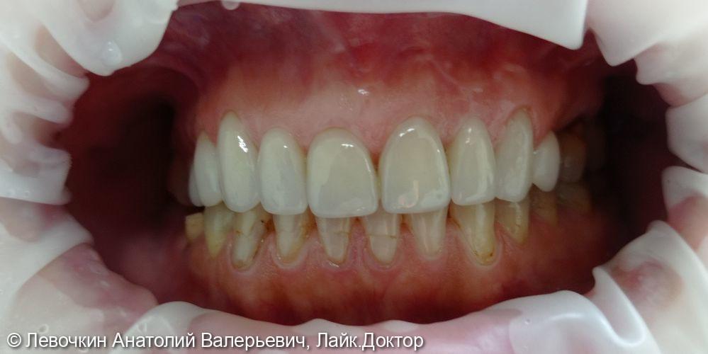 Протезирование зубов верхней челюсти винирами - фото №2