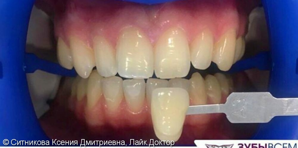 Профессиональная гигиена и отбеливание зубов - фото №1