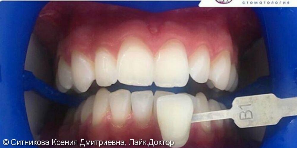 Профессиональная гигиена и отбеливание зубов - фото №2