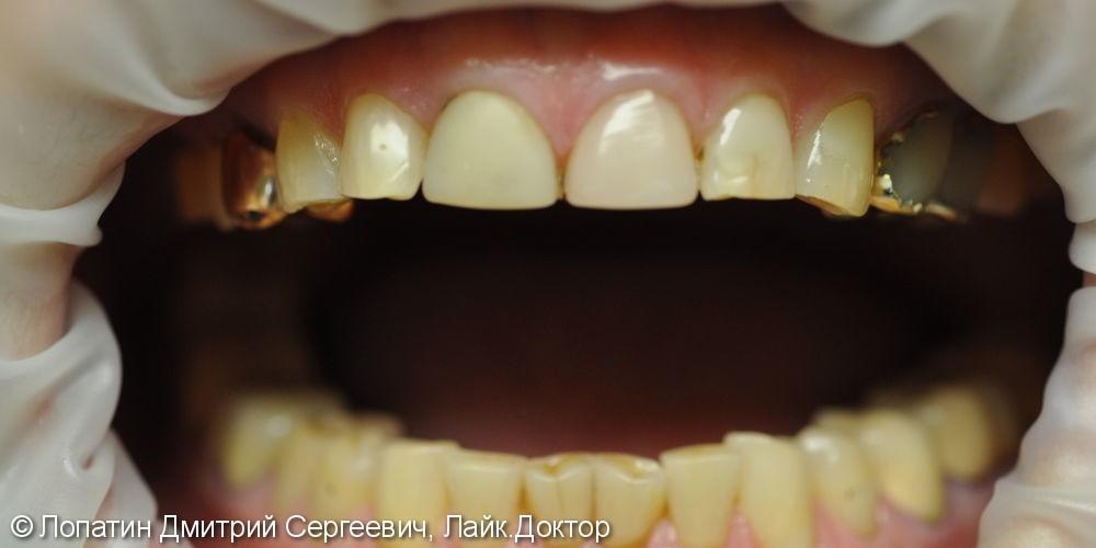Восстановление стираемости зубов с помощью виниров - фото №1