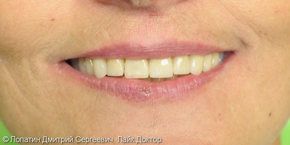 Восстановление стираемости зубов с помощью виниров - фото №3