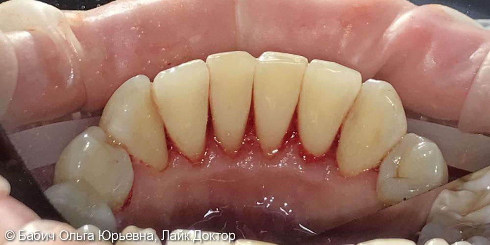 Профессиональная гигиена полости рта. Удаление зубного камня - фото №2