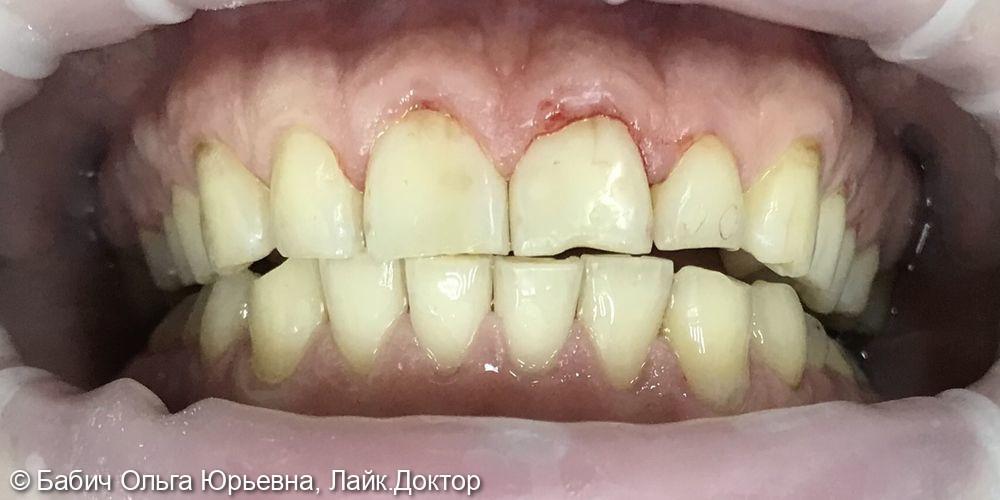 Профессиональная гигиена полости рта. Полировка пломб передних зубов - фото №2