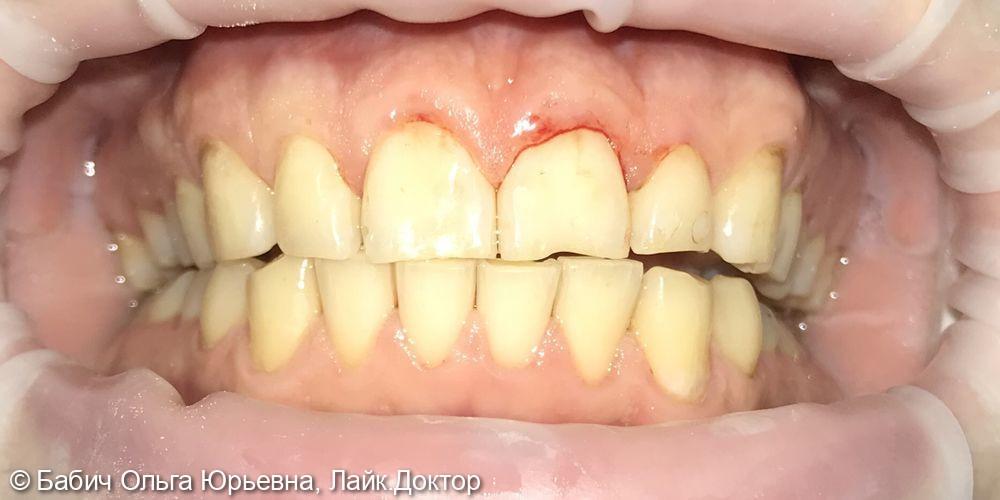 Профессиональная гигиена полости рта. Полировка пломб передних зубов - фото №3