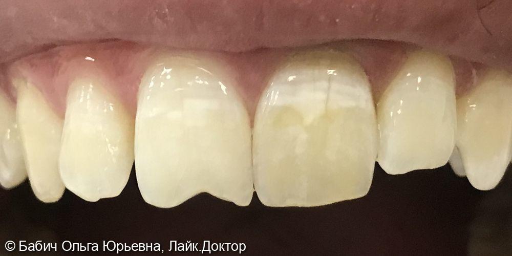 Перелечивание канала и Внутреннее отбеливание зуба 2.1 и восстановление режущего края зуба 1.1 - фото №1