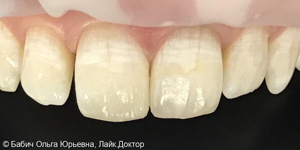Перелечивание канала и Внутреннее отбеливание зуба 2.1 и восстановление режущего края зуба 1.1 - фото №4
