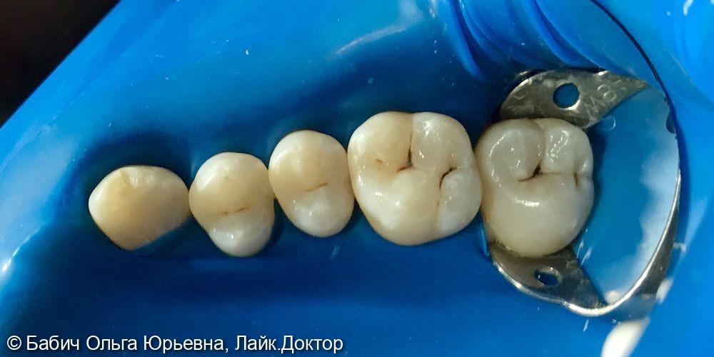 Лечение кариеса зубов 1.5, 1.6, 1.7 - фото №1