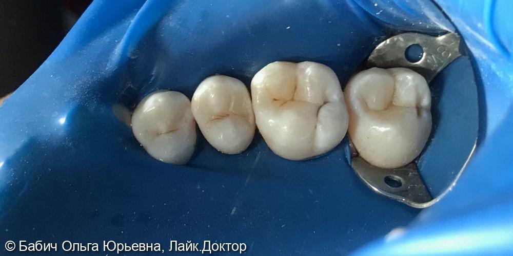Лечение кариеса зубов 1.5, 1.6, 1.7 - фото №3