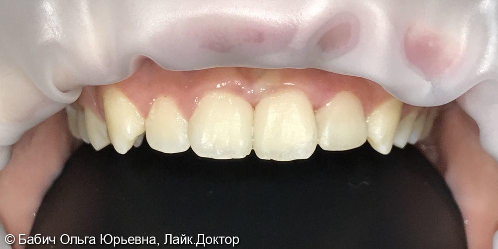 Реставрация зуба 2.2 после травмы - фото №1
