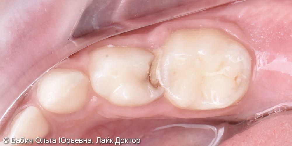 Лечение пульпита молочного зуба 8.4 - фото №1