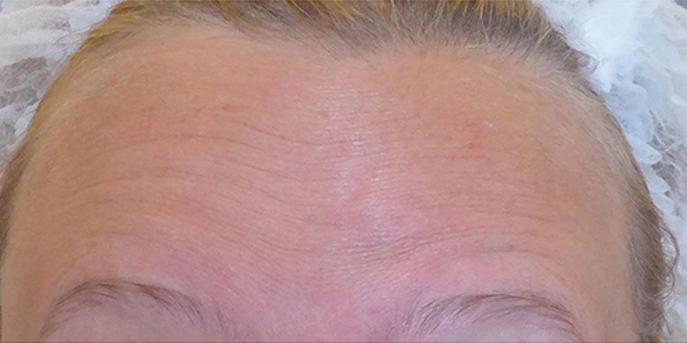 Результат ботулинотерапии у пациентки 58 лет - фото №1