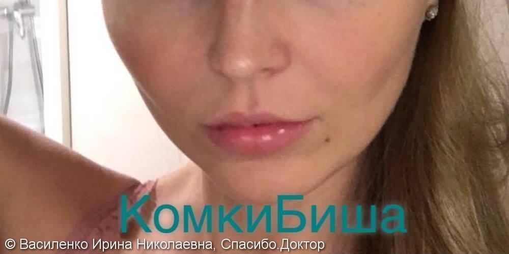 Удаление комков Биша: утонченный вытянутый овал лица, устранение птоза средней трети лица - фото №2