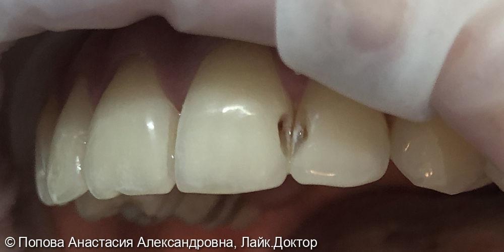 Лечение кариеса дентина - фото №1