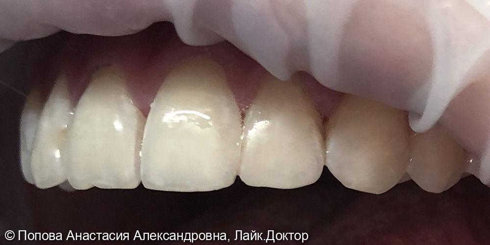 Лечение кариеса дентина - фото №2