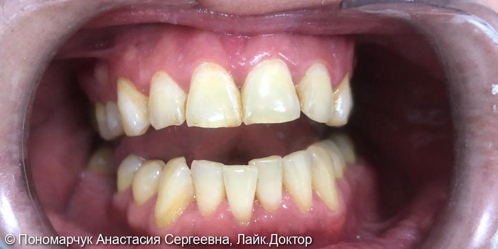 Комплексное пародонтологическое лечение - фото №2