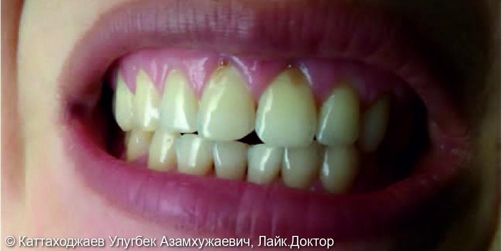 Устранение клиновидных дефектов - фото №1