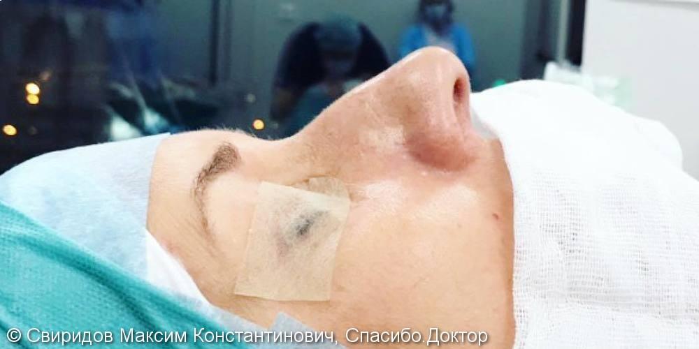 Результат закрытой ринопластики, фото до и сразу после операции носа - фото №1