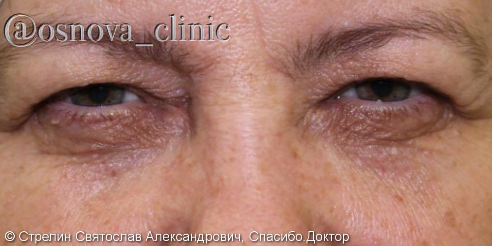 Результат круговой блефаропластики, фото до и после операции через 6 месяцев - фото №1