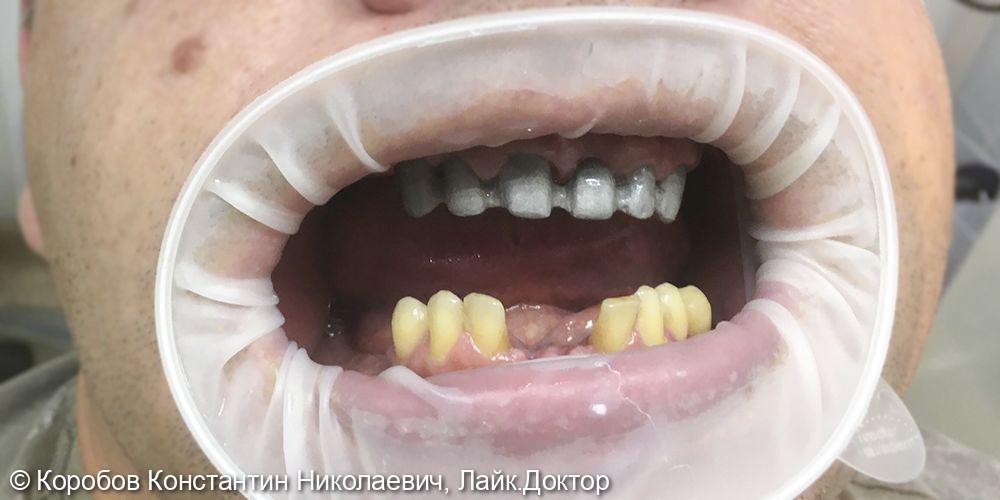Протезирование зубов - фото №1