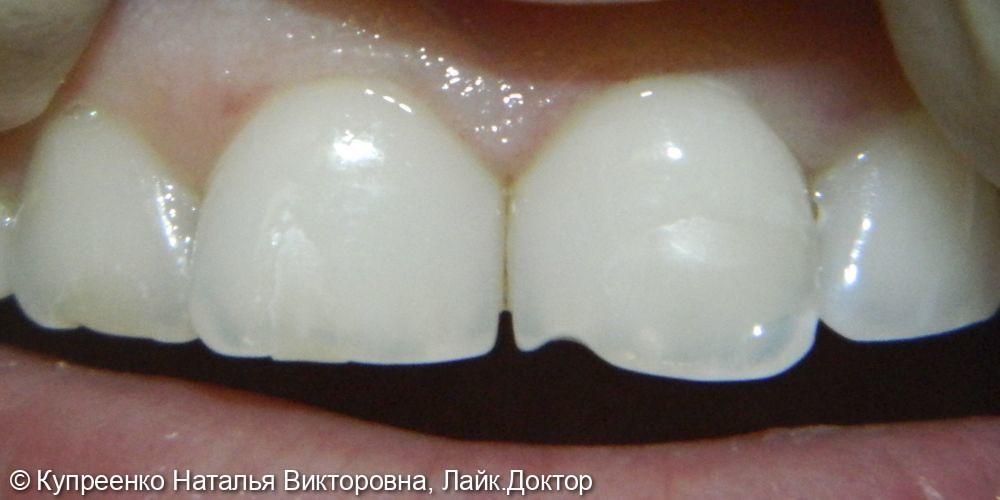 Художественная реставрация зубов - фото №1