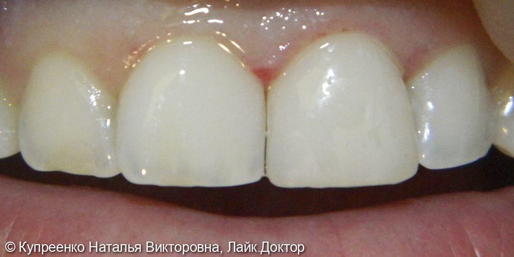 Художественная реставрация зубов - фото №2