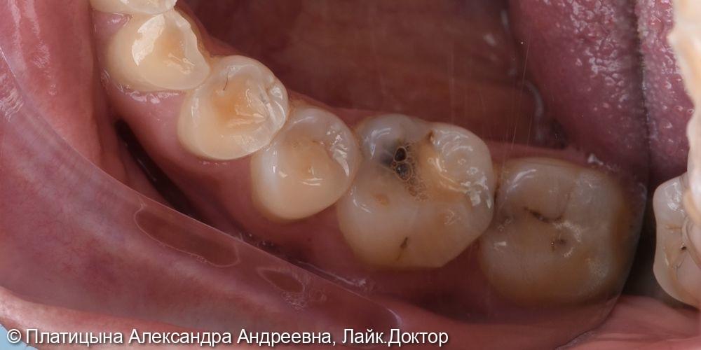 Восстановление зуба с помощью керамической накладки Emax - фото №1