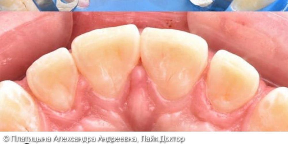 Лечение скрытого кариеса на фронтальных зубах- резцах верхней челюсти - фото №4