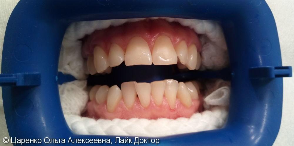 Результат отбеливания зубов системой ZOOM 4 - фото №1