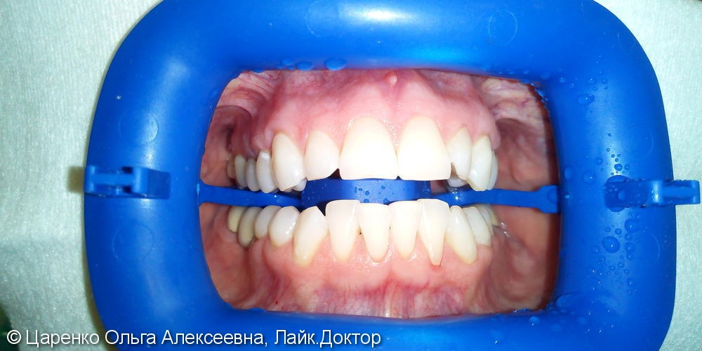 Результат отбеливания зубов системой ZOOM 4 - фото №3