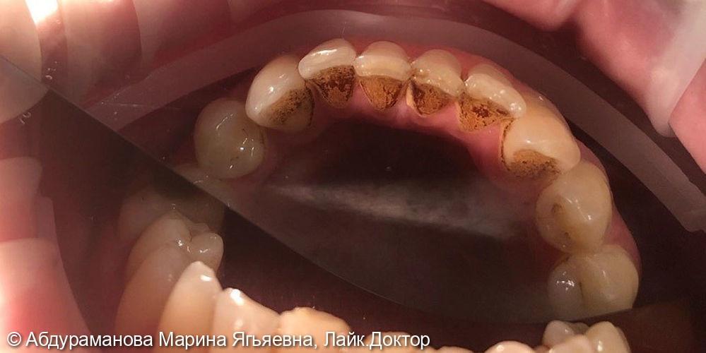 Профессиональная гигиена полости рта, удалены поддесневые зубные отложения - фото №1