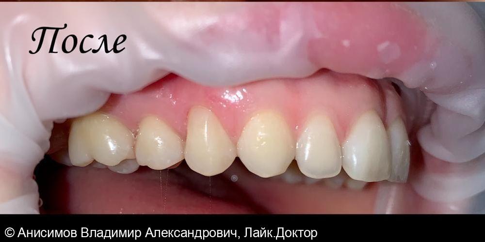 Лечение клиновидного дефекта - фото №2