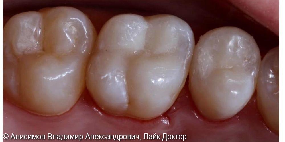 Лечение кариеса зуб 1.6, 1.5 - фото №3