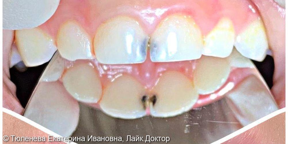 Лечение кариеса молочного зуба - фото №1