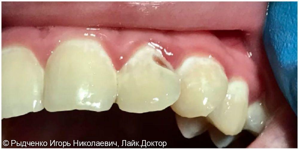 Лечение пришеечного кариеса верхнего бокового резца - фото №1