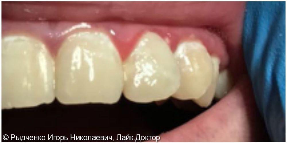 Лечение пришеечного кариеса верхнего бокового резца - фото №2