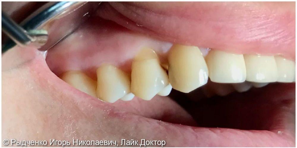 Лечение клиновидного дефекта 1.4 зуба и глубокого кариеса 1.3 зуба одновременно из светокомпозита - фото №1