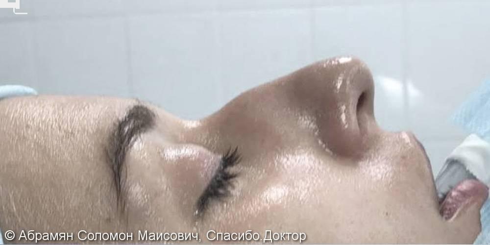 Убрали горб носа, пластика носа, фото до и после операции - фото №1