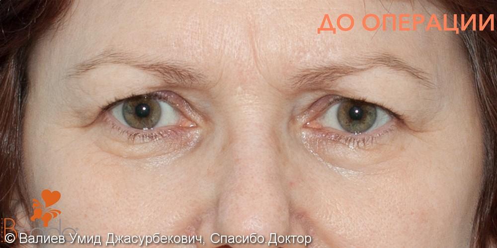 Блефаропластика верхних и нижних век, фото до и 1 месяц после операции - фото №1