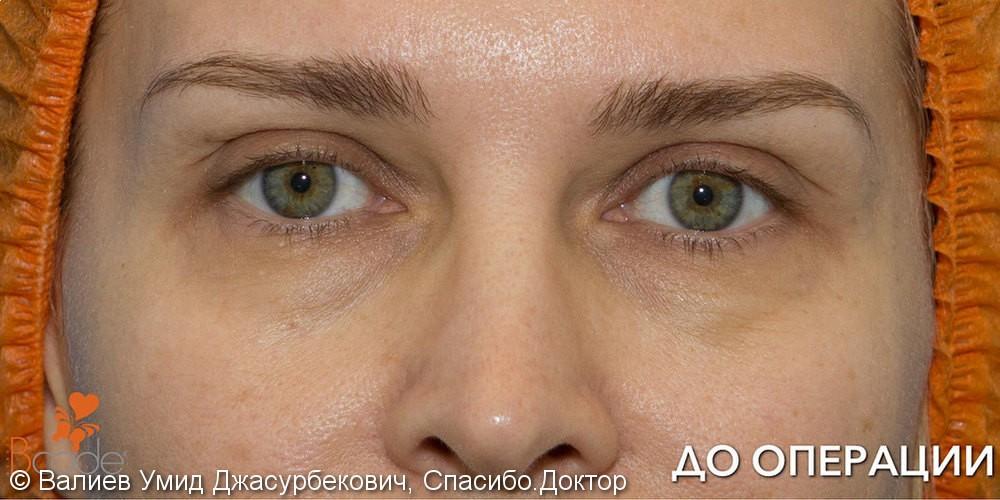 Фото до и после удаления «мешков» и морщин под глазами - фото №1