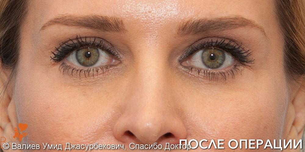 Фото до и после удаления «мешков» и морщин под глазами - фото №2