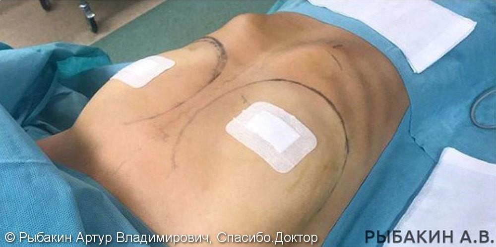 Увеличивающая маммопластика, фото до и после операции, доступ в подмышечной впадине - фото №1
